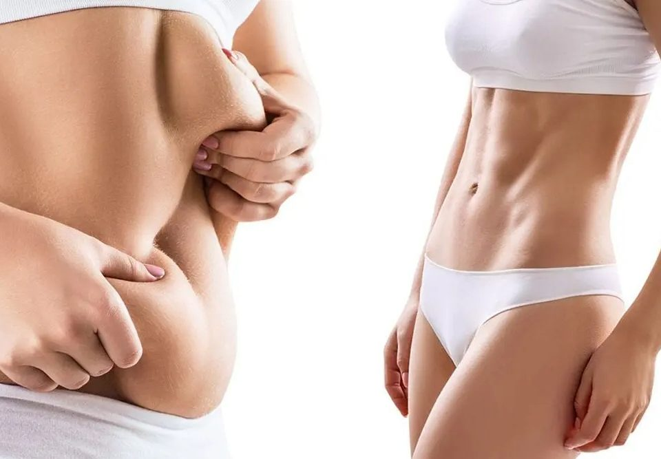 Liposuction on Arms and Back