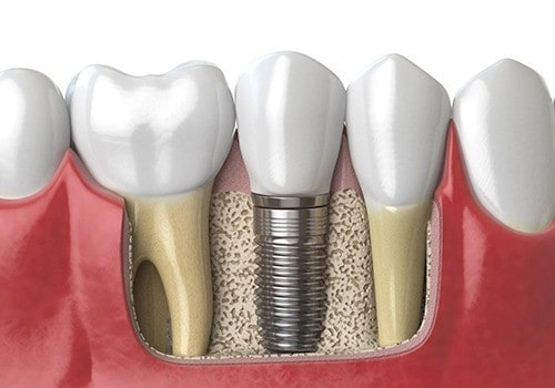 Cost for dental implants full mouth - HayatMed Medical Blog