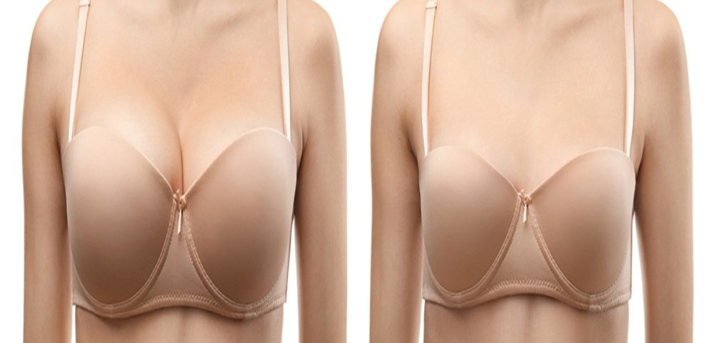 Breast reduction surgery recovery