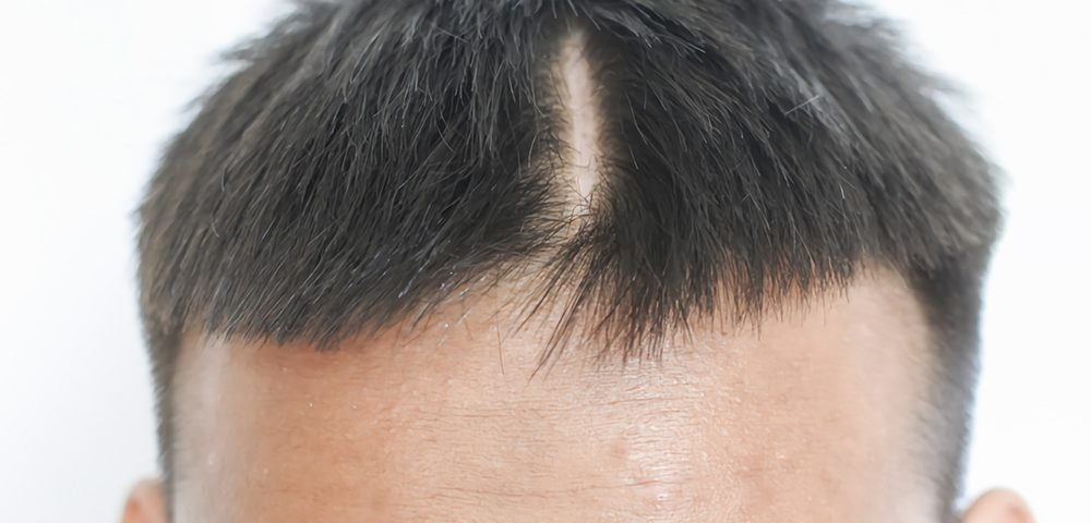 How to Get a Hair Transplant on a Scar