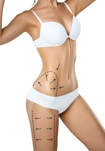 What is non-surgical liposuction