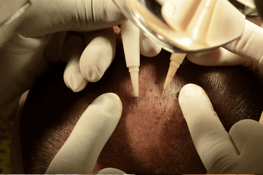 What is DHI Hair Transplant?