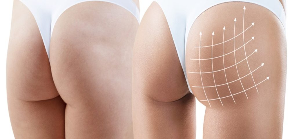 Cost for Fat Transfer to Buttocks
