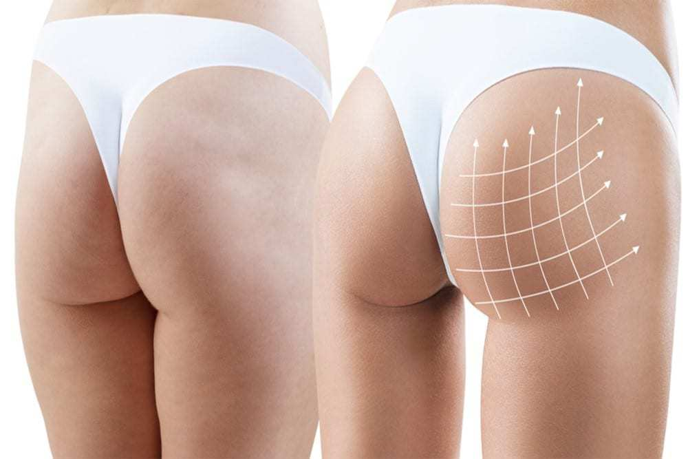 How Much Does it Cost for Fat Transfer to Buttocks?