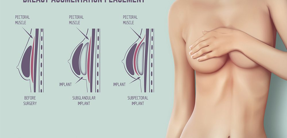 How Much Does Breast Augmentation Cost