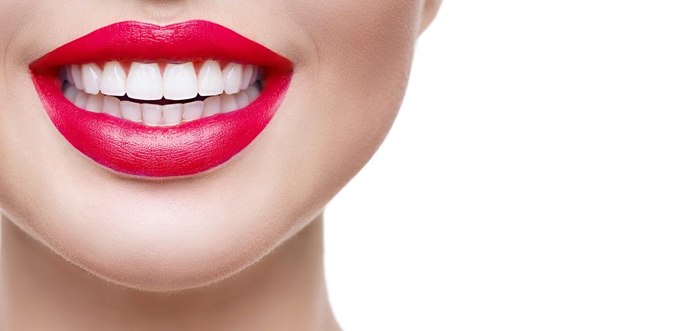 Are Veneers Permanent - The Complete Guide