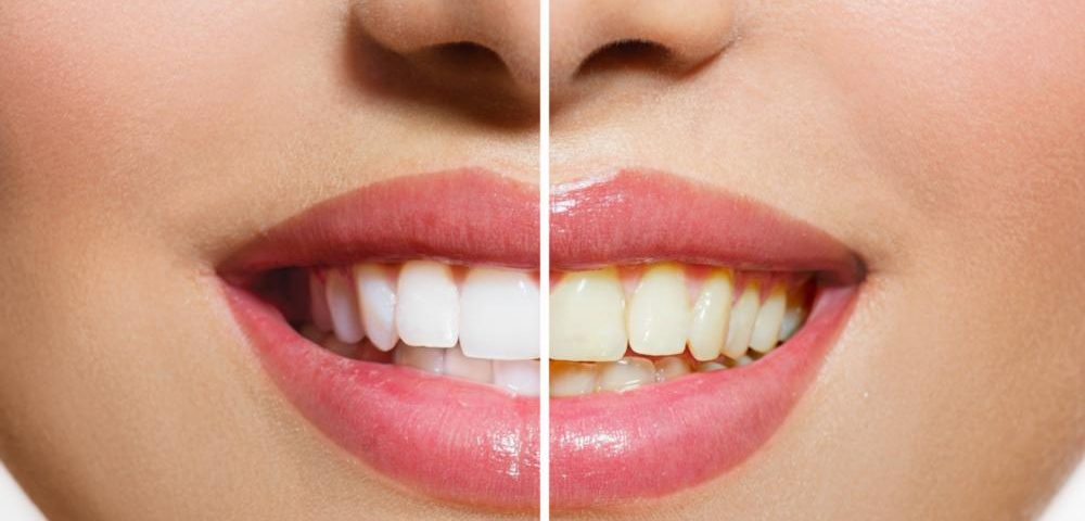 Is Hismile Safe for Your Teeth