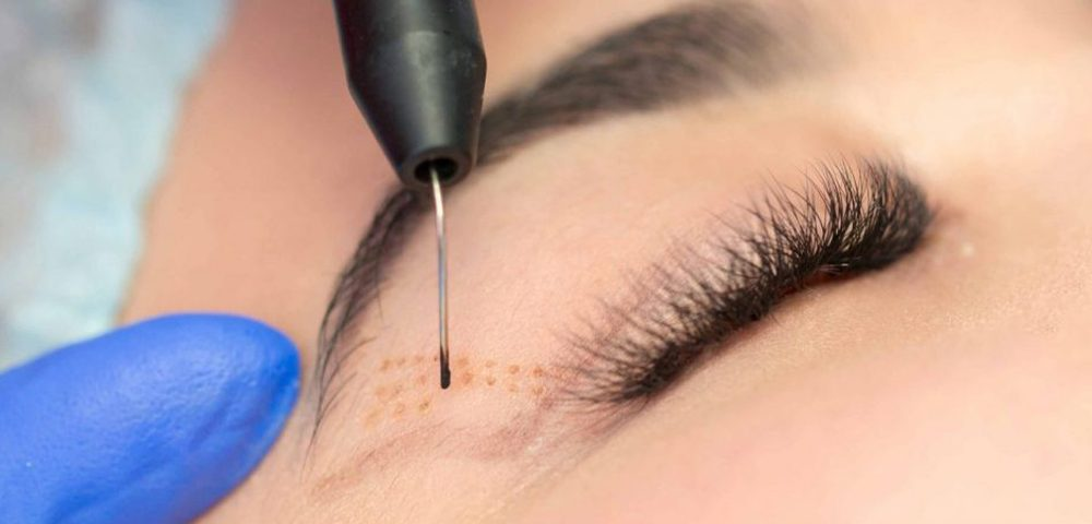 Eyelid surgery with laser