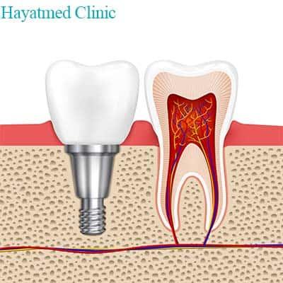 Procedure for dental implant