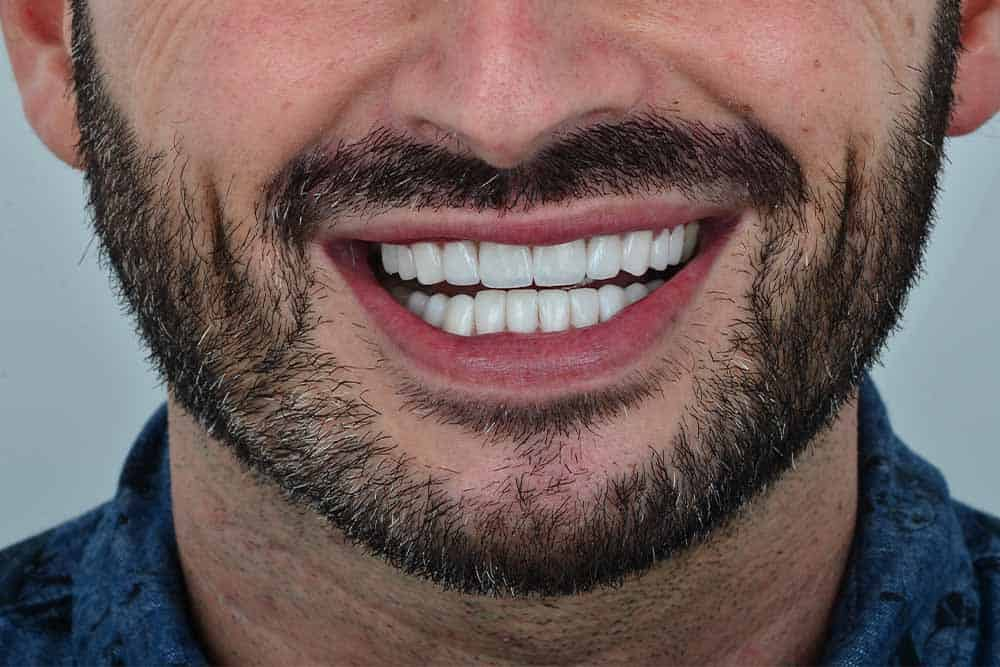 What Are Veneers