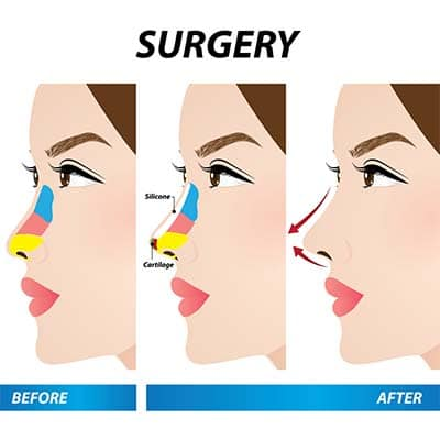 Changes Possible With a Rhinoplasty