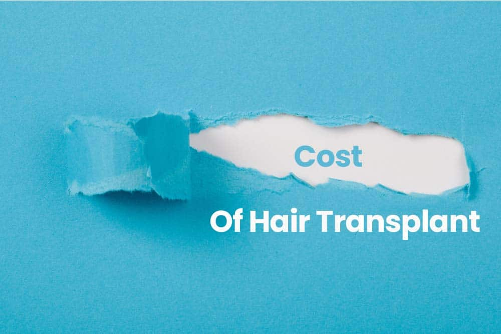Cost of a Hair Transplant