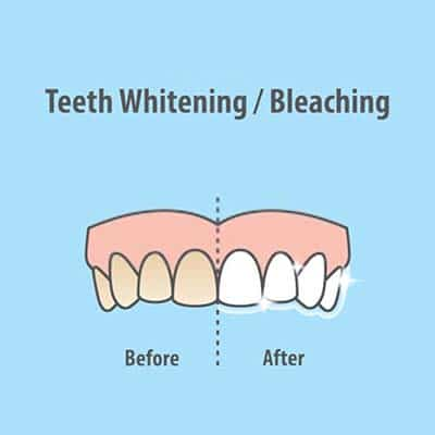 How much does teeth bleaching cost