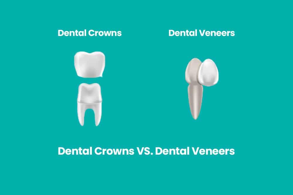Veneers vs. Crowns