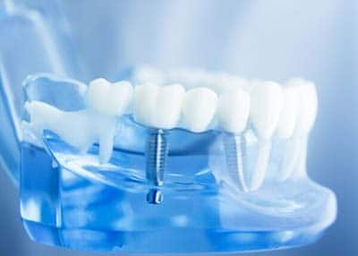 Where are the best dental implants in turkey