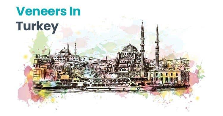 veneers-Turkey