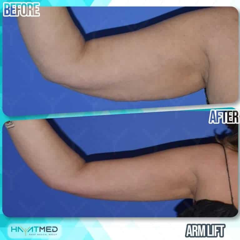 arm lift before and after 1