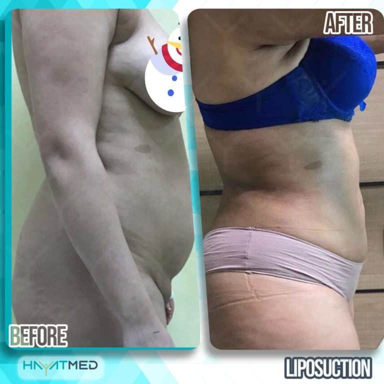 liposuction before and after 10