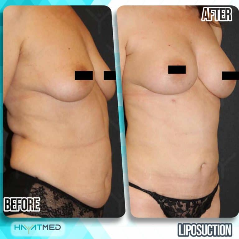 liposuction before and after 17