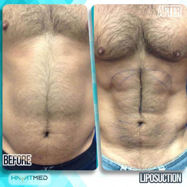 liposuction before and after 19