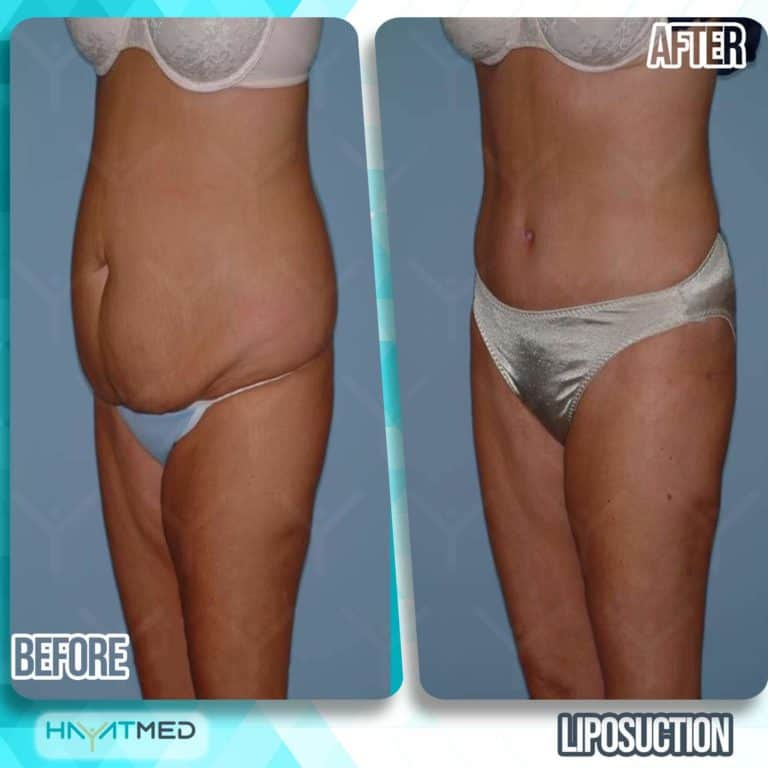 liposuction before and after 4