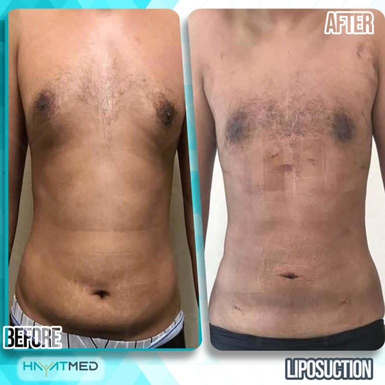 liposuction before and after 9