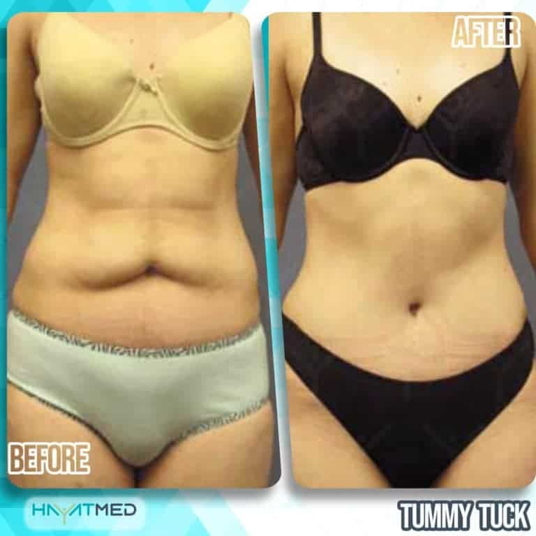 tummy tuck Before and After 8