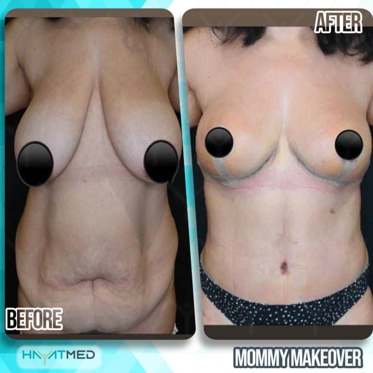 mommy makeover before and after 1