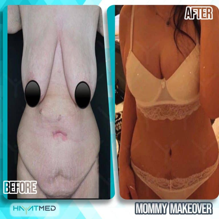 mommy makeover before and after 2