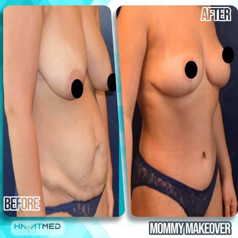mommy makeover before and after 4
