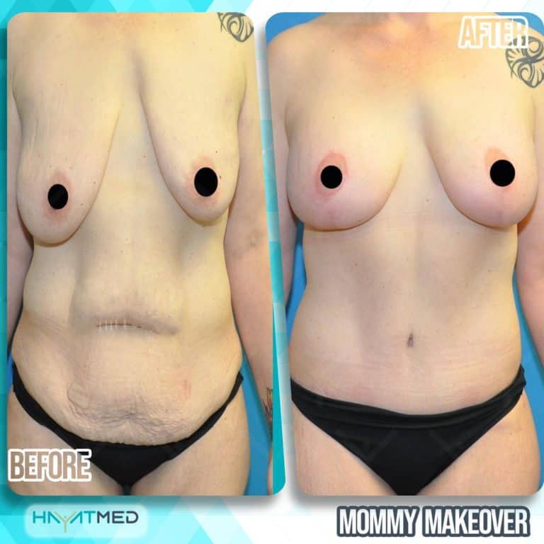 mommy makeover before and after 5