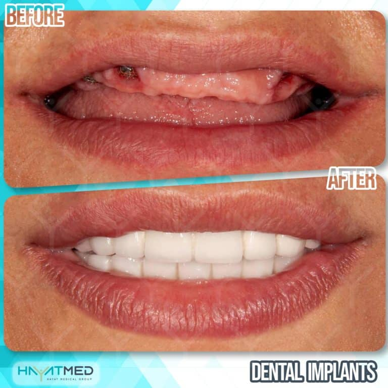 Dental implants before and after 1