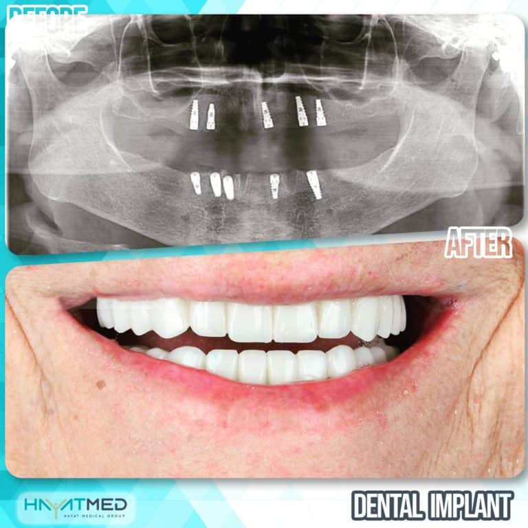 Dental implants before and after 3