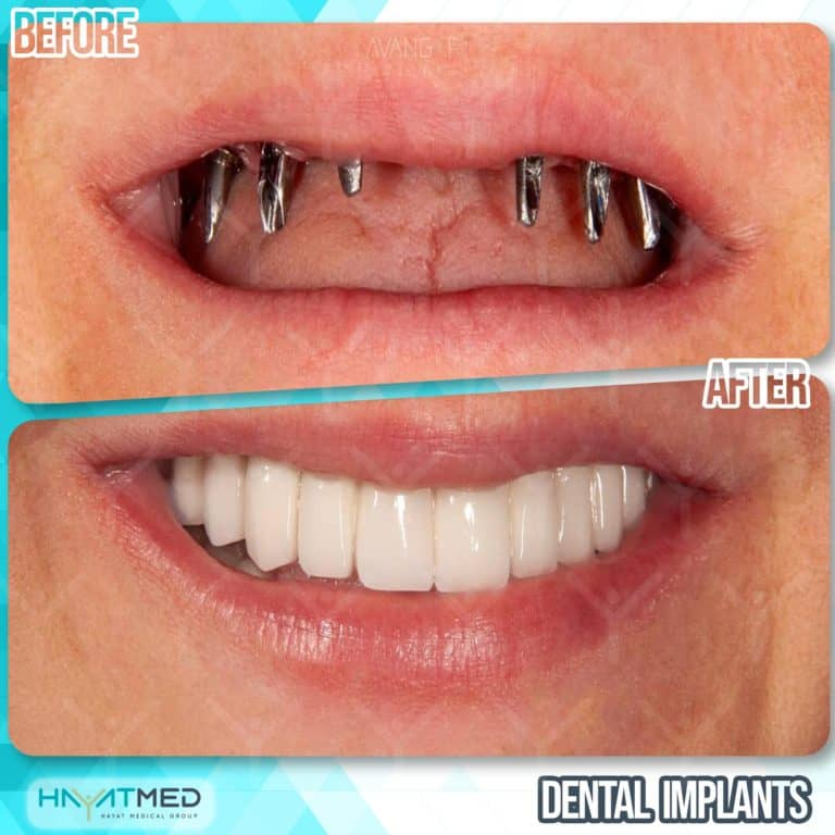 Dental implants before and after 4