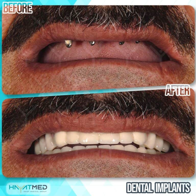 Dental implants before and after 5