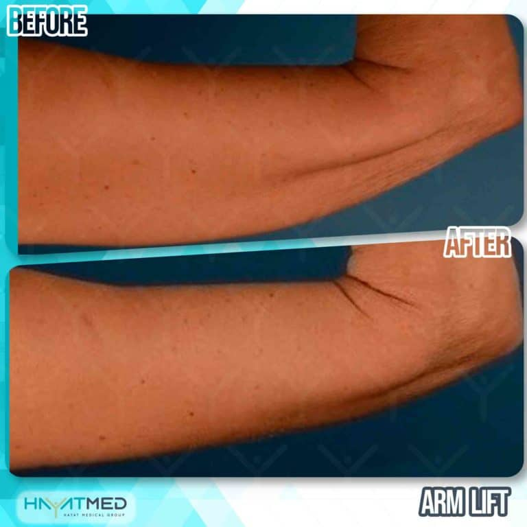arm lift before and after 3