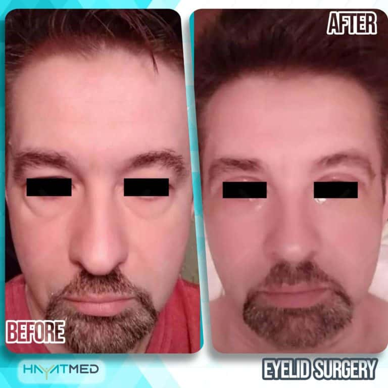 eyelid surgery before and after 1