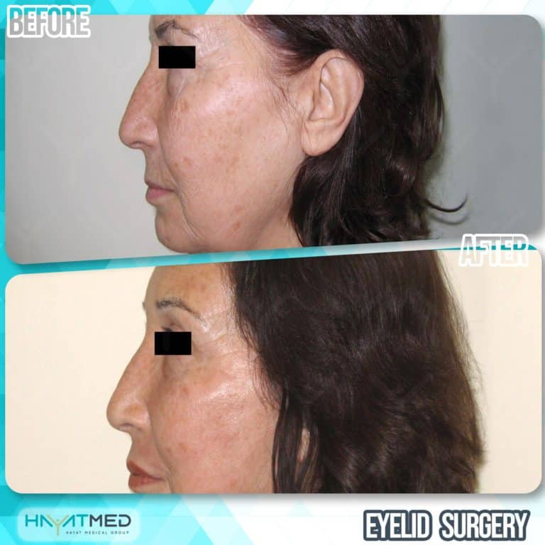 eyelid surgery before and after 3