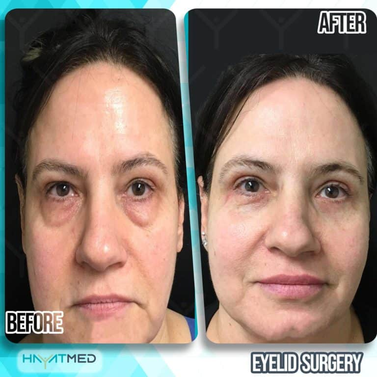 eyelid surgery before and after 4