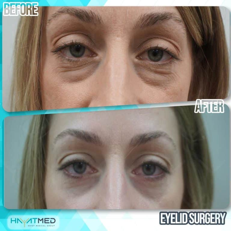 eyelid surgery before and after 5