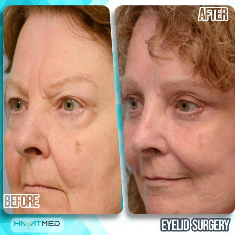 eyelid surgery before and after 6