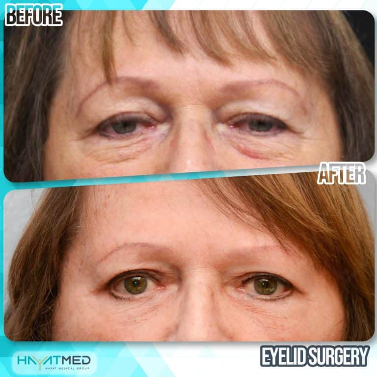 eyelid surgery before and after 7