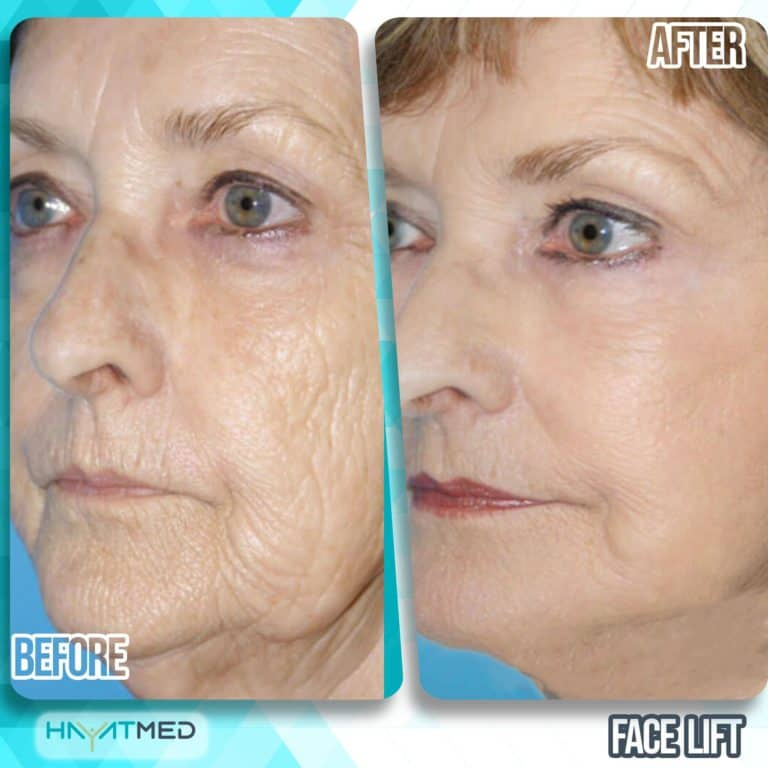 face lift before and after 1
