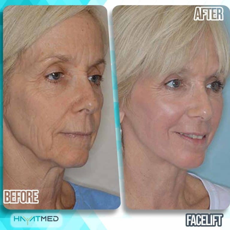 face lift before and after 2