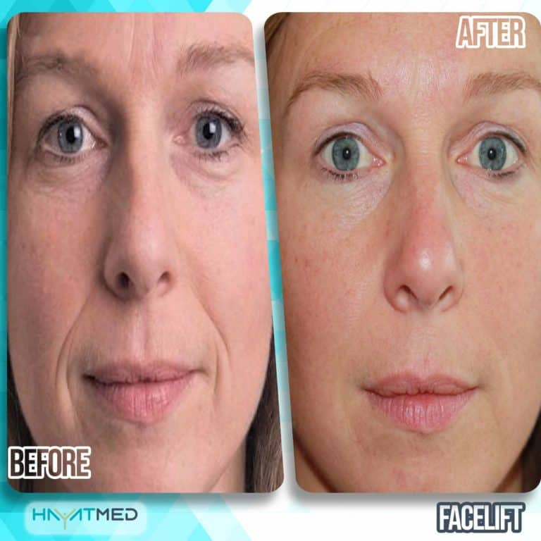 face lift before and after 4