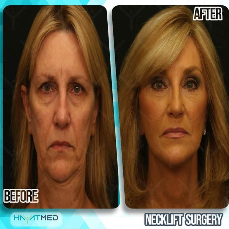 neck lift surgery before and after 1