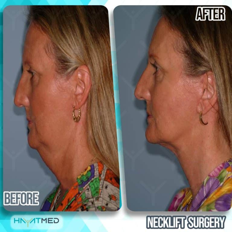 neck lift surgery before and after 2