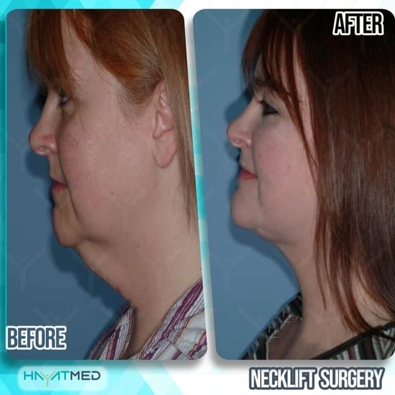 neck lift surgery before and after 4