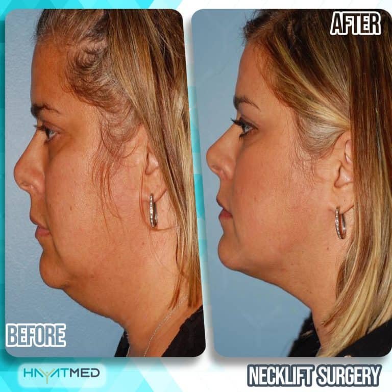 neck lift surgery before and after 5