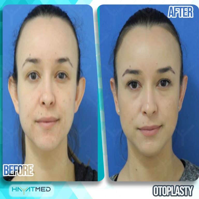 otoplasty before and after 5